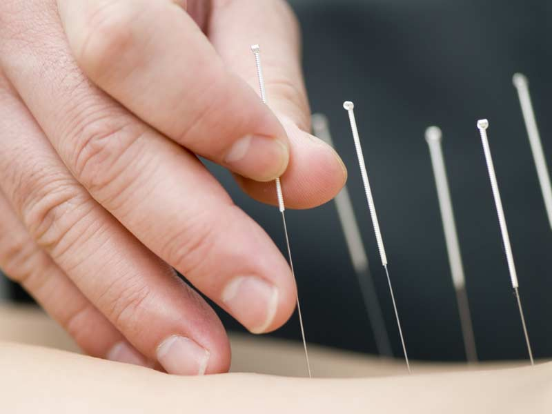chiropractor performing dry needling with acupuncture needles