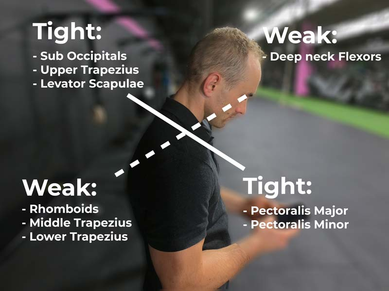 upper crossed syndrome showing overactive and weak muscles