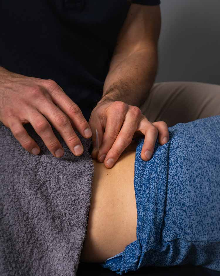 sports chiropractor performing dry needling