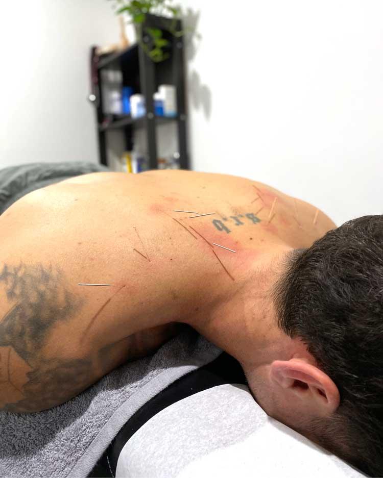 Newmarket chiropractor dry needling