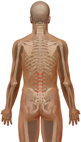 Lumbar facet joint syndrome pain