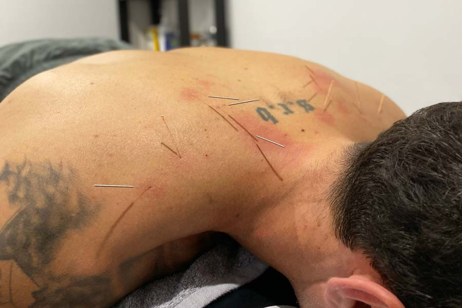 workcover dry needling by a chiropractor