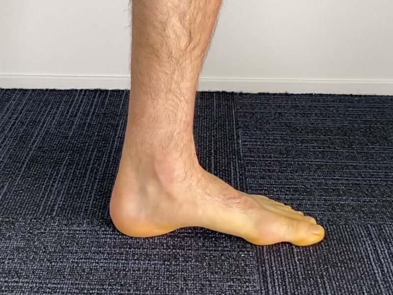 calf raise test for heel pad syndrome or plantar fasciitis