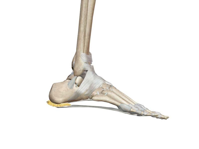 Heel pad syndrome